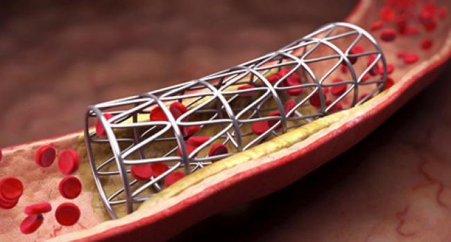 У Вінницькому кардіоцентрі безкоштовно ставлять стент при гострому інфаркті