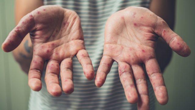 Кількість захворілих на кір у Вінницькій області збільшилася на третину