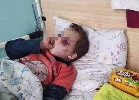 За катування дитини мешканка Вінниччини два роки проведе за ґратами