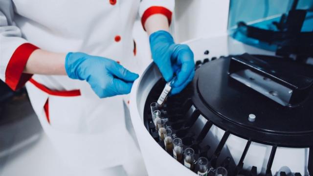У Вінницькому обласному лабораторному центрі відновлять платне тестування на COVID-19