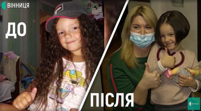 У Вінниці 5-річна дівчинка відрізала волосся, щоб допомогти онкохворому хлопчику. ВІДЕО