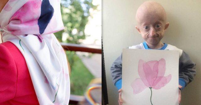 Ательє виготовило хустину з малюнком вінничанки Ірини Химич, яка хворіє на прогерію