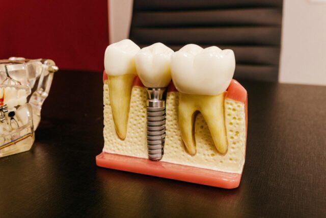 Імплантація зубів: плюси, мінуси та де можна отримати послугу у Вінниці
